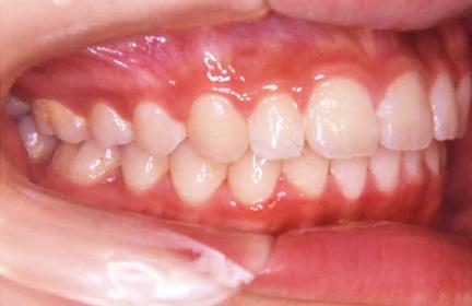 上顎前突症の症例after